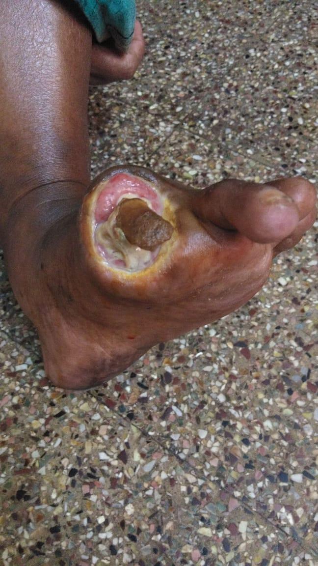 Diabetic Foot Ulcer    Gangrene Jaibunnisha  U2013 Welcome To Dr